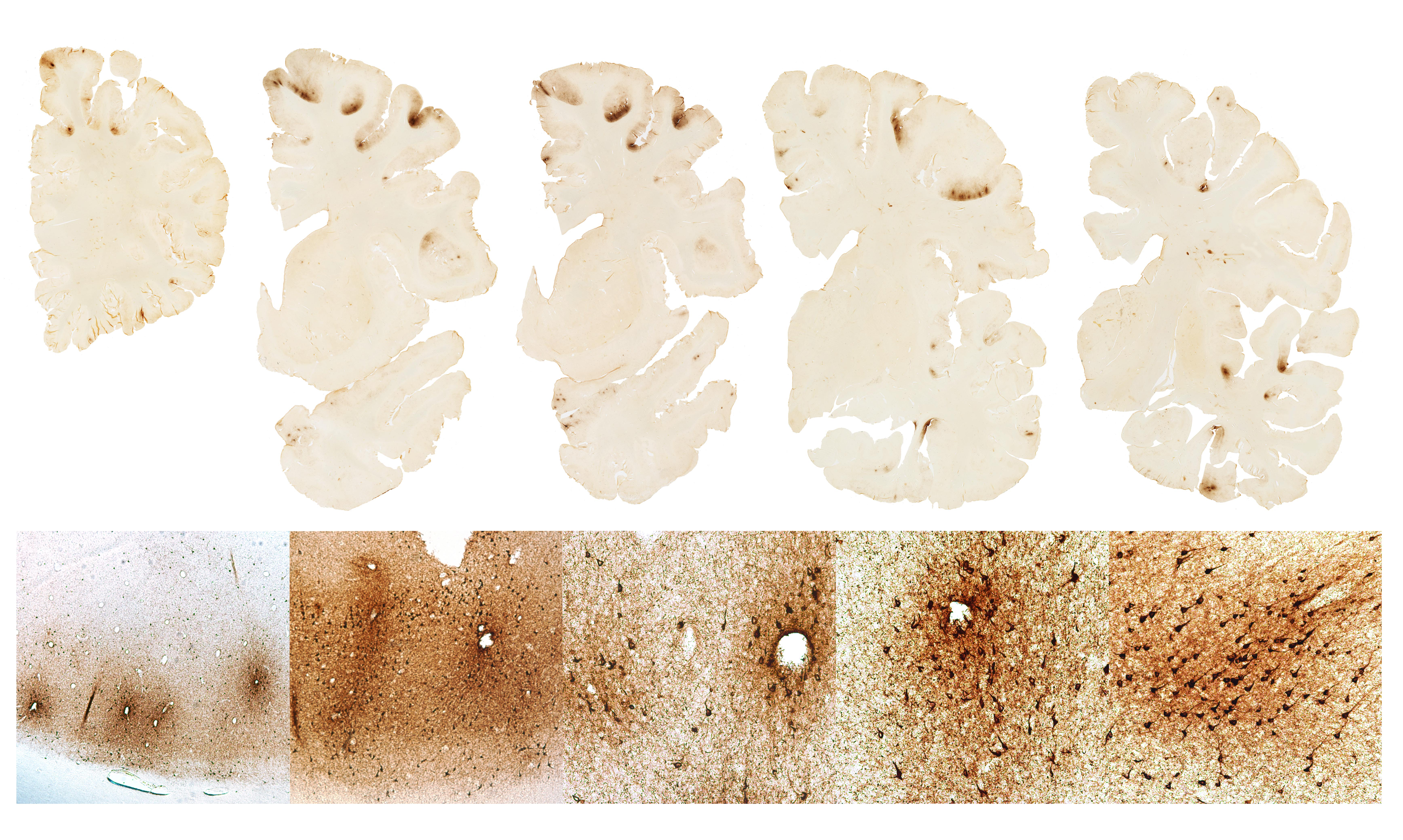 Learn the symptoms in the four stages of CTE - The Boston Globe